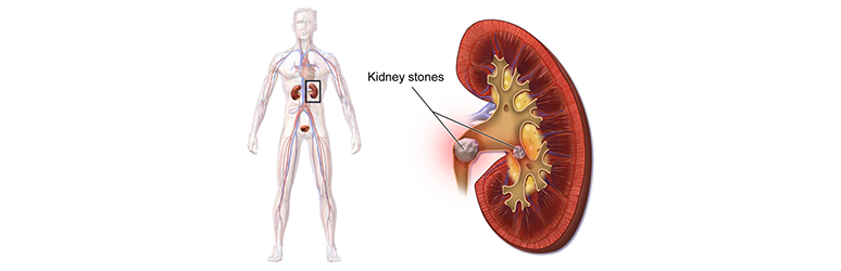 Kidney Stone Treatment at SCI Hospital Delhi.
